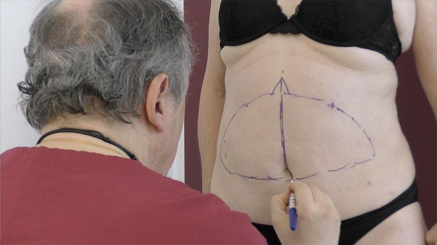 Sabato 24 marzo presso il Centro Medico DEM si è tenuto un importante corso teorico/pratico per apprendere le nuove tecniche legate al trattamento di cavitazione.