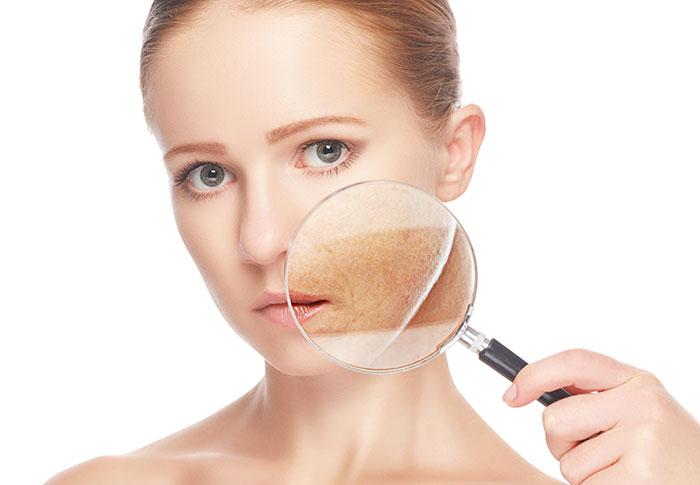 Rimozione macchie della pelle presso il Centro Medico DEM