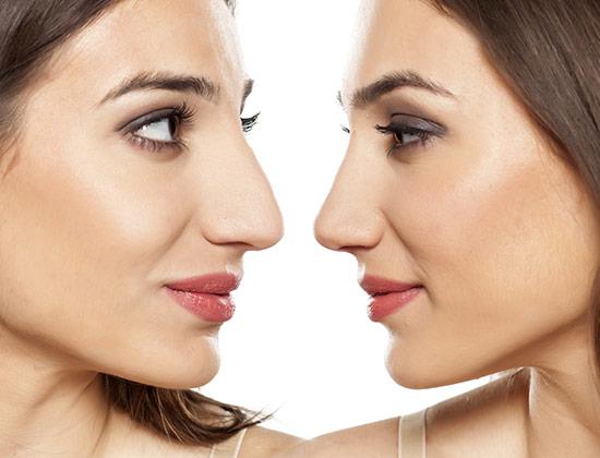 Come rifarsi il naso senza ricorrere alla chirurgia? Il dott. Lucio Miori, titolare del Centro Medico Miori, risponde alla domanda sulle pagine della rivista Vogue.