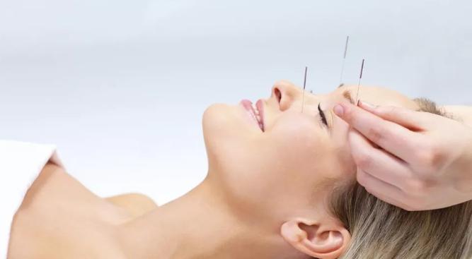 Terapia del dolore - Agopuntura