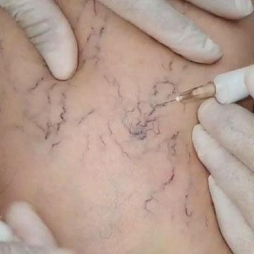 Trattamento sclerosante presso il Centro Medico Miori