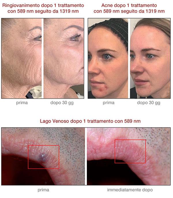Laser vascolare trattamenti
